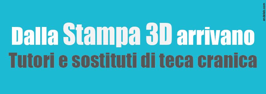 Progetto Wasp: stampa3d sostituti teca cranica