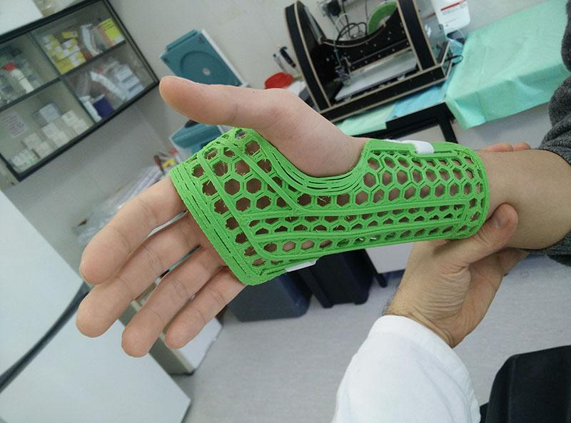 In collaborazione con l'Ospedale Ortopedico Rizzoli : sperimentazione di tutori prodotti con tecniche di stampa 3D.